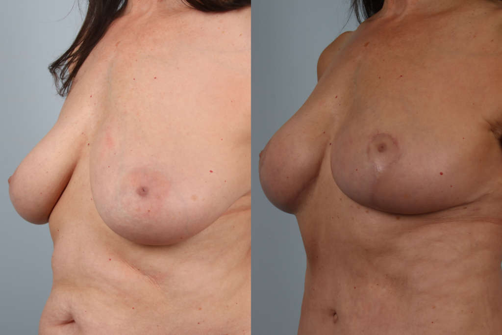 Breast lift before and after side close up view
